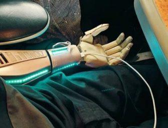 Implantan un brazo biónico inspirado en Metal Gear Solid
