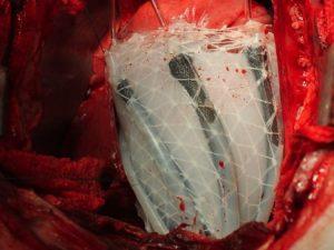 Crean una solución robótica para tratar afecciones cardíacas